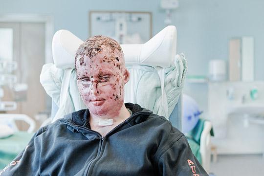 Gustaf Seppelin Solli i sitt rum på brännskadeavdelningen på akademiska sjukhuset i Uppsala tidigare i år. Nu vill han uppmana människor att våga ifrågasätta de risker man utsätts för på jobbet. Foto: TOR JOHNSSON